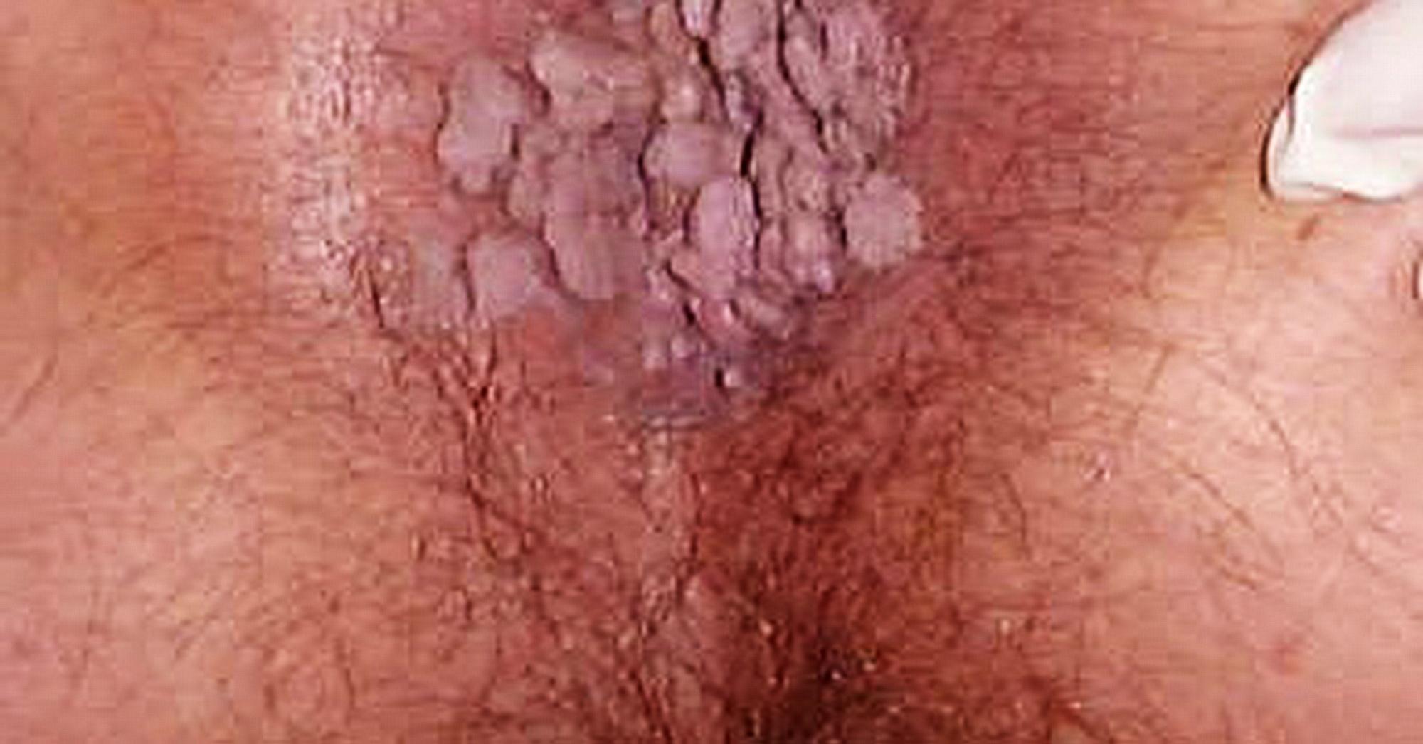 detox london de irigare colonică din papilomavirusul uman