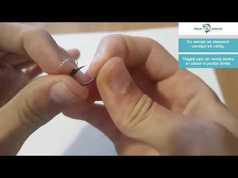 il papilloma virus e mortale papilom pe gene cum se îndepărtează