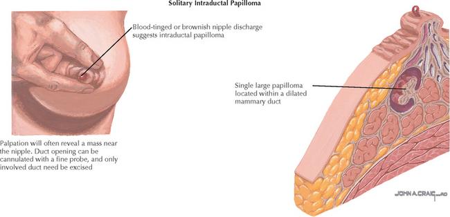 intraductal papilloma doctor uk