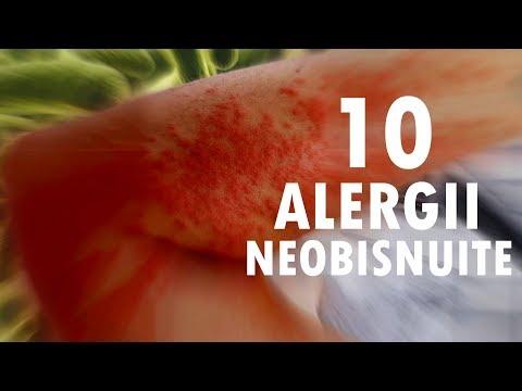 viermi rotunzi și alergii ce simptome ai cand ai viermisori