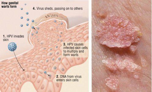 komplikasi human papillomavirus