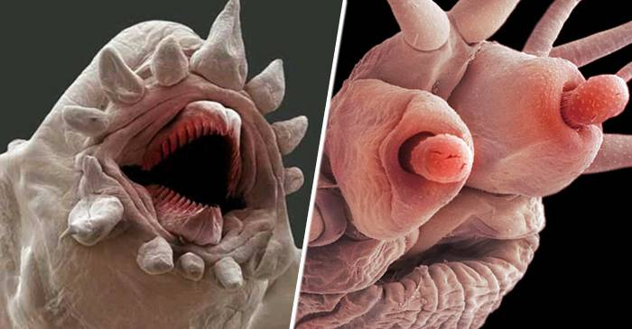 Semne ale viermei rotunde din corpul uman, Ierburi din viermele rotund pentru om