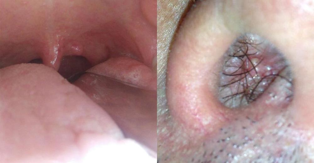 papilloma invertito immagini condiloamele decât sunt periculoase