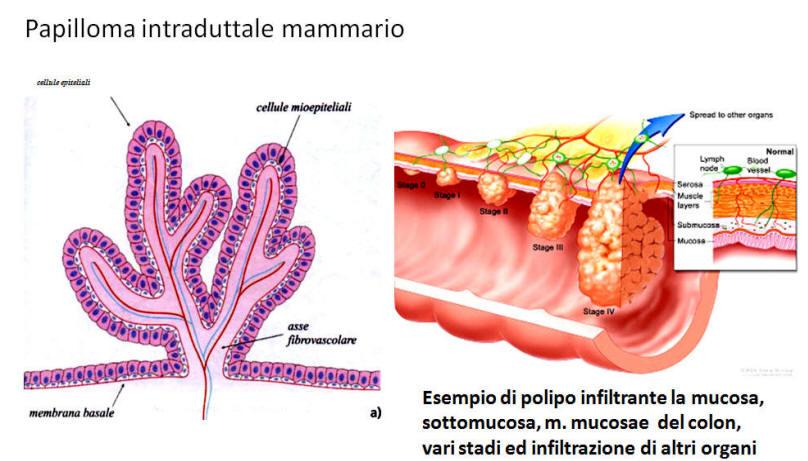 papilloma mammario