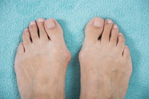umflături între tratamentul degetelor de la picioare