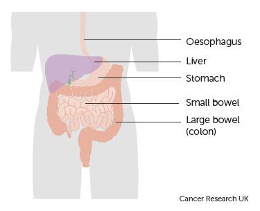 varicoză în colon