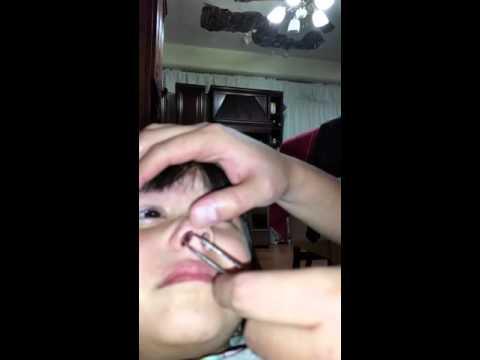 Oxiuros picazon nariz. Virus del papiloma nariz