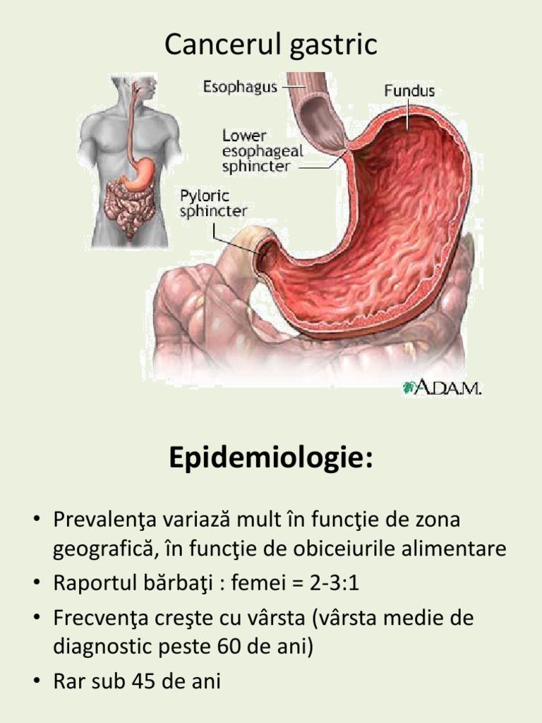 papillomavirus de la gorge pastile pentru slabit