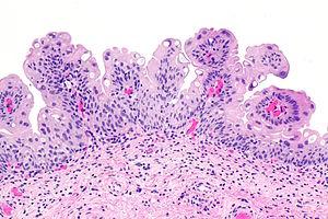 papilloma of the urinary bladder
