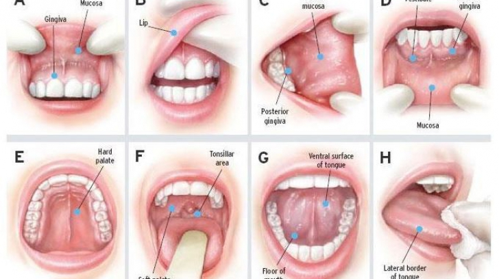 hpv treatment in pregnancy virus del papiloma y menstruacion