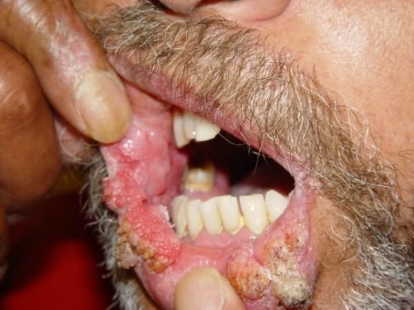 simptomele papilomului la femei