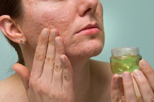 tratamentul acneei între degete produse de detoxifiere pentru curățarea colonului