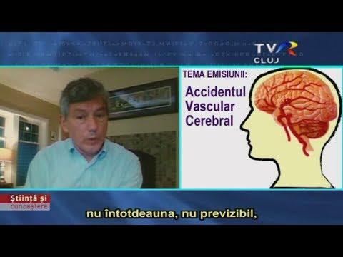 tratamentul paraziților cerebrali papiloame pe tratamentul vulvei
