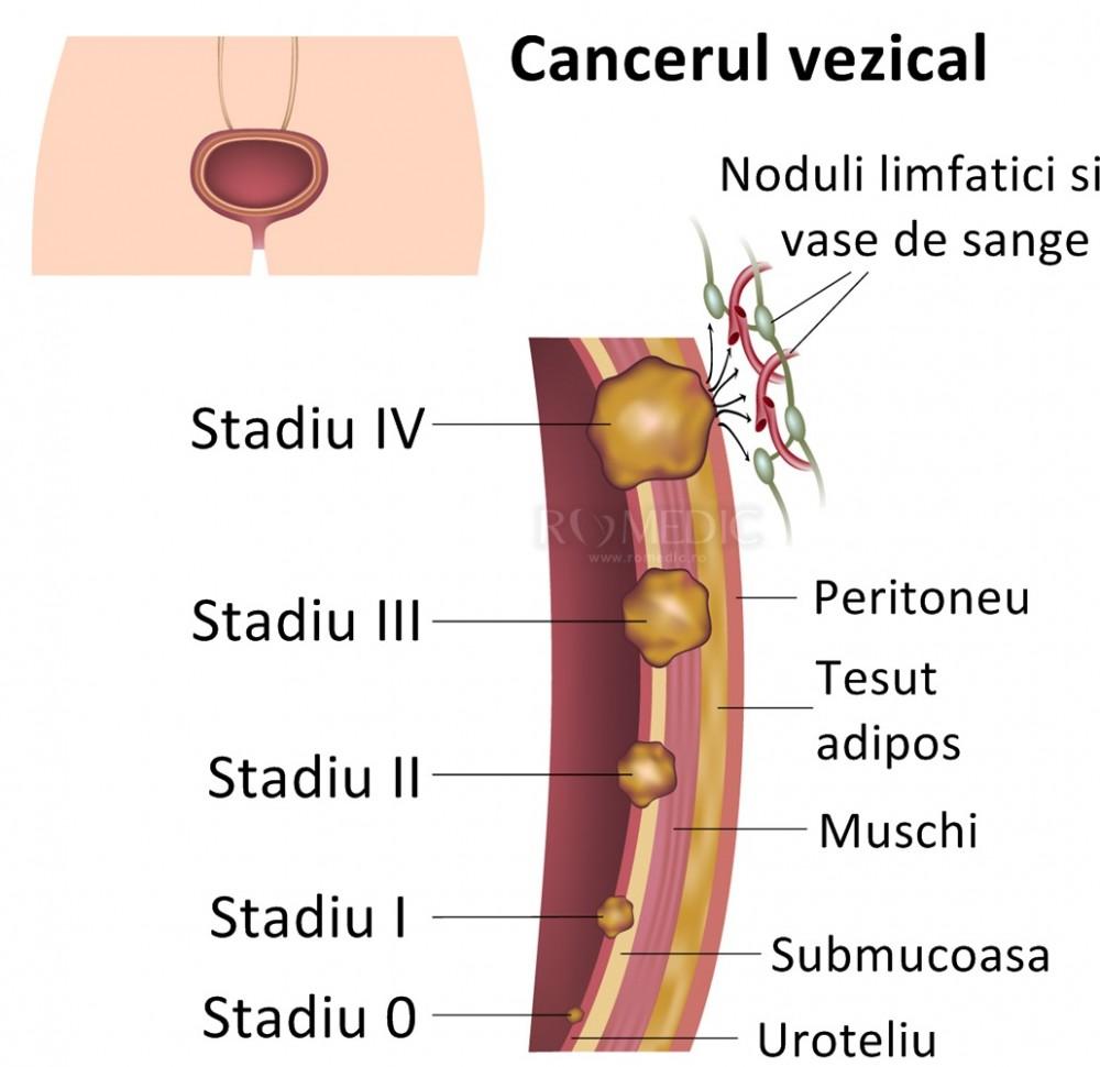 varico vasele de organe mici pelvis