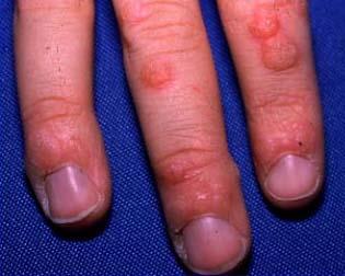 warts on hands sign of hiv crema pentru papiloame pe gat