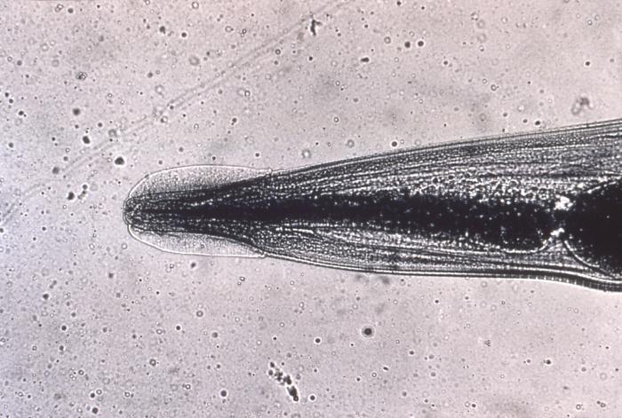 enterobius vermicularis in bisaya