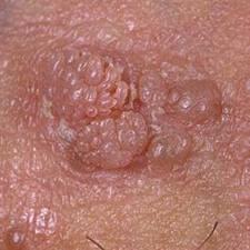 paraziti 2020 virus del papiloma medicamentos