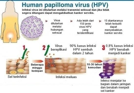 gejala papilloma virus condyloma ngo ce este