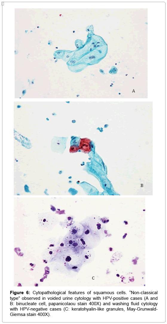 hpv bladder infection