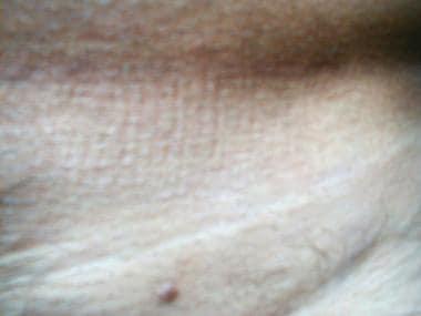 condiloame din vagin care aveau