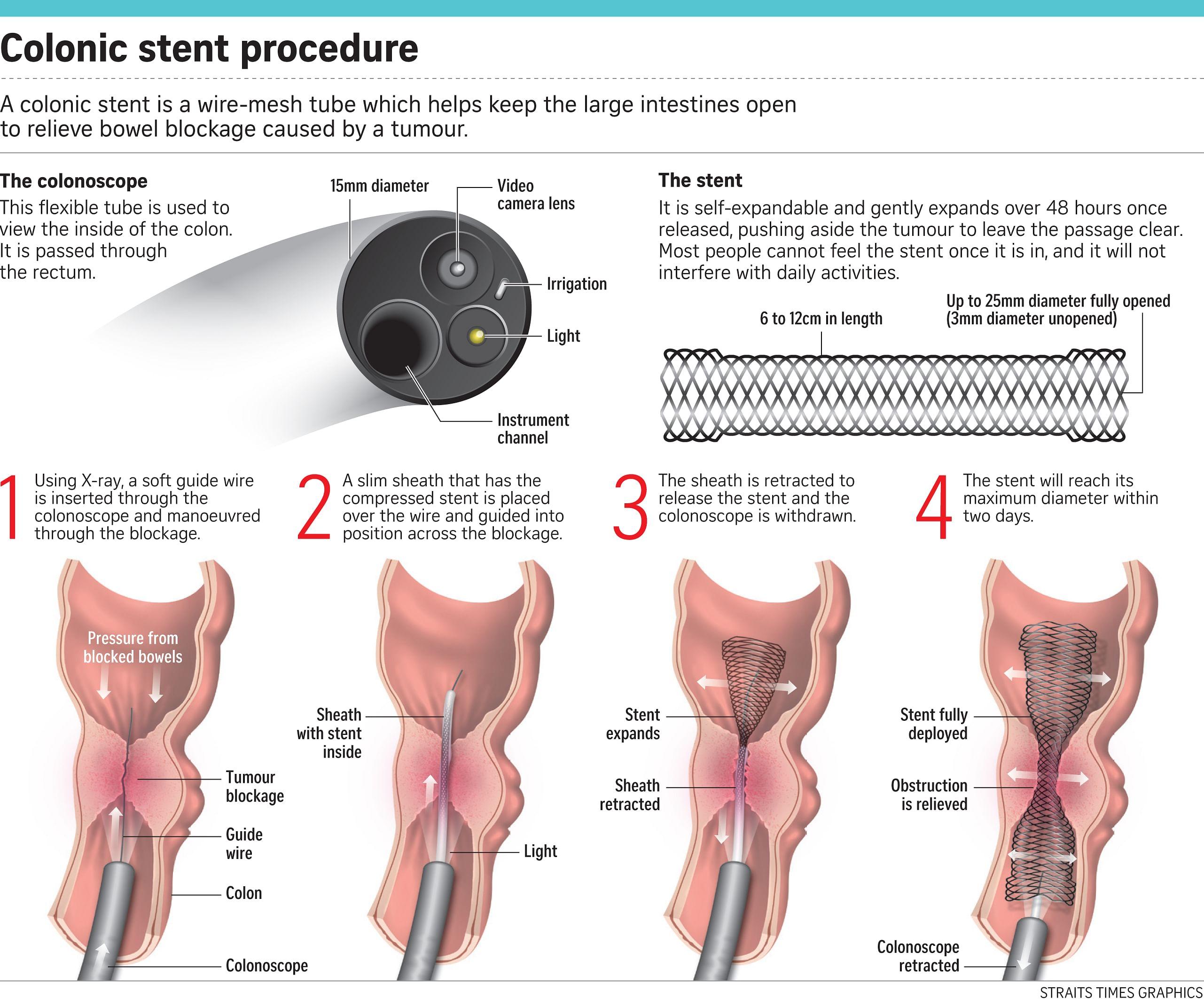 peritoneal cancer blockage)