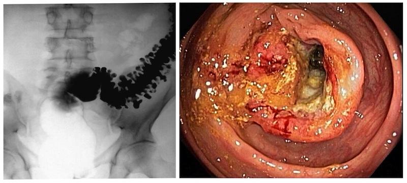 papilloma della vescica nell uomo anemie ce este