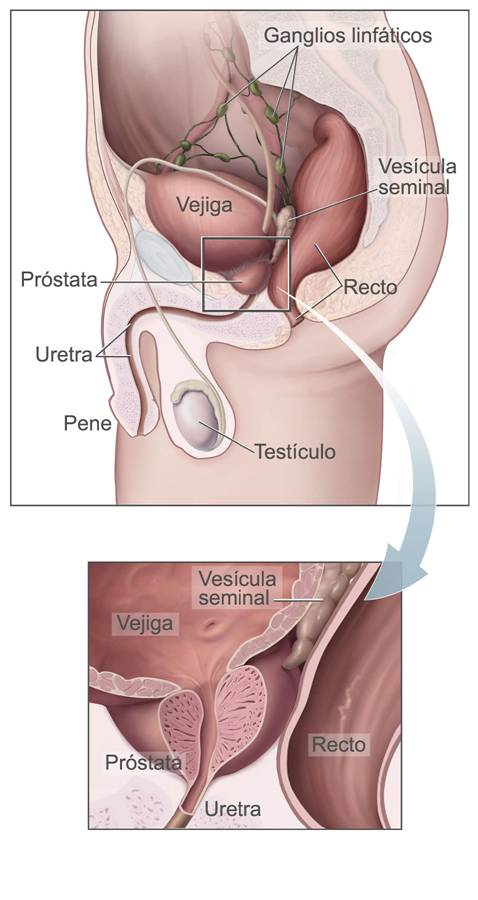 Cancer de prostata en edad joven