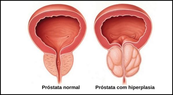 cancer prostata cauze îndepărtarea verucilor genitale ale vulvei