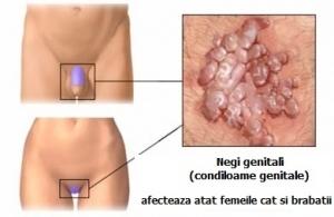 Infectia cu Virusul HPV : Cum o recunoastem, cum o tratam si cum o prevenim