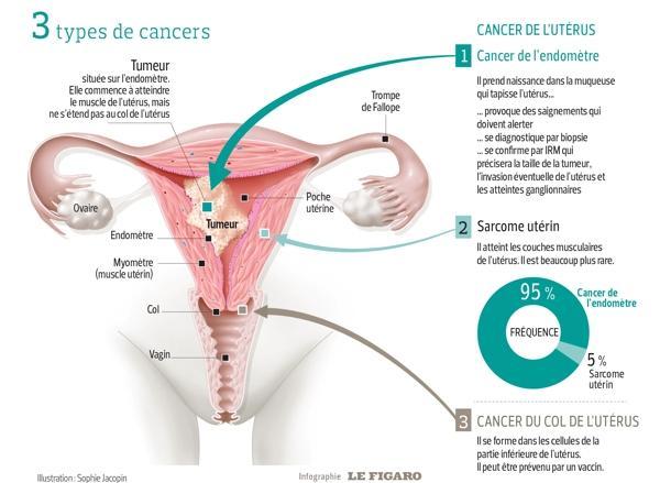 varicoza venelor de col uterin