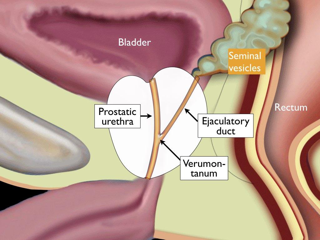 cancerul malign de prostata papilloma warze bilder