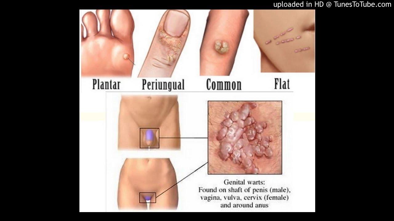 condilom genital cum arată