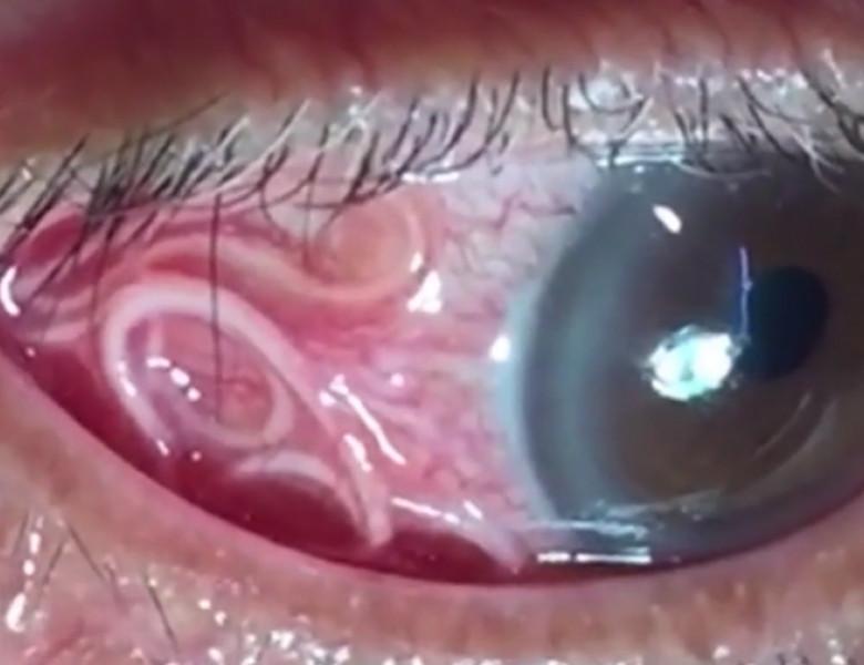 negi genitale pe ochi