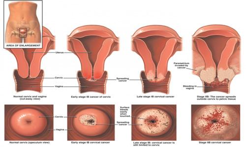 tratament impotriva parazitilor din corp papanicolaou anormal cie 10
