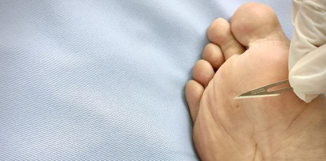 cum să îndepărtați o verucă pe talpa piciorului