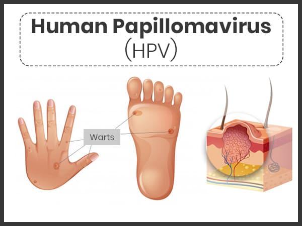 cause du papillomavirus