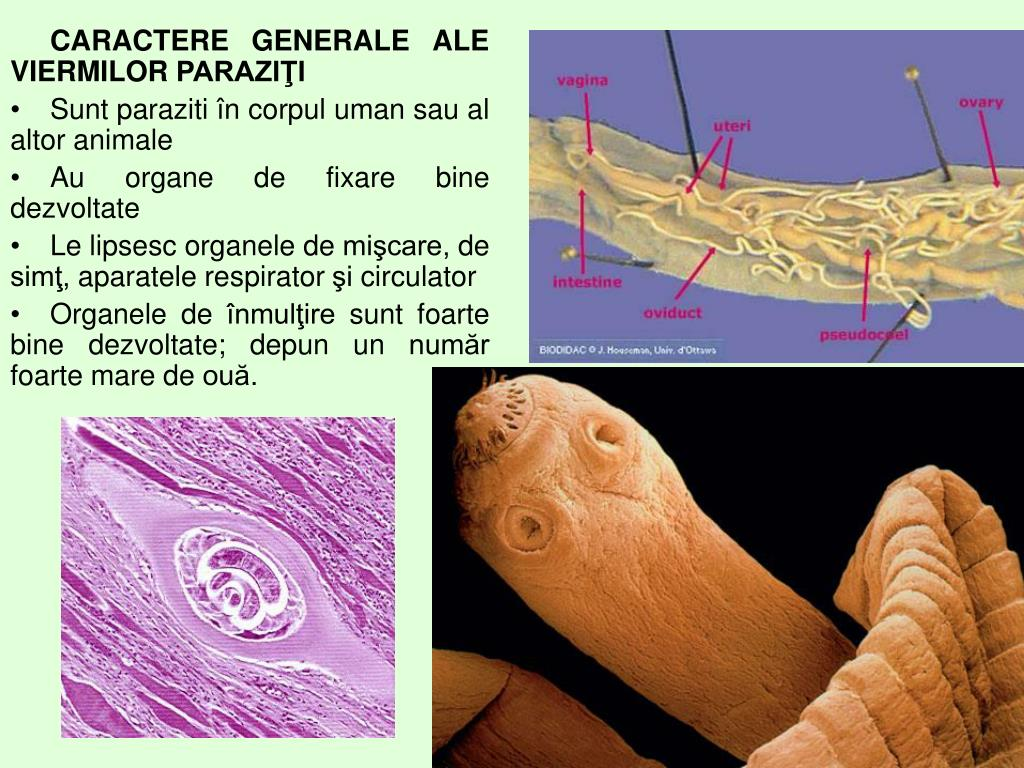 viermi paraziti ppt hpv impfung mit 21