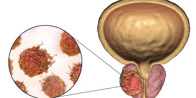 Cancerul de prostata | parcareotopeni24.ro