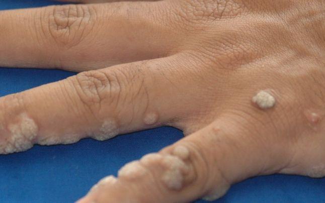 Cum Scapi De Negi. Tratamente Medicale Pentru A Scăpa De Veruci | Libertatea