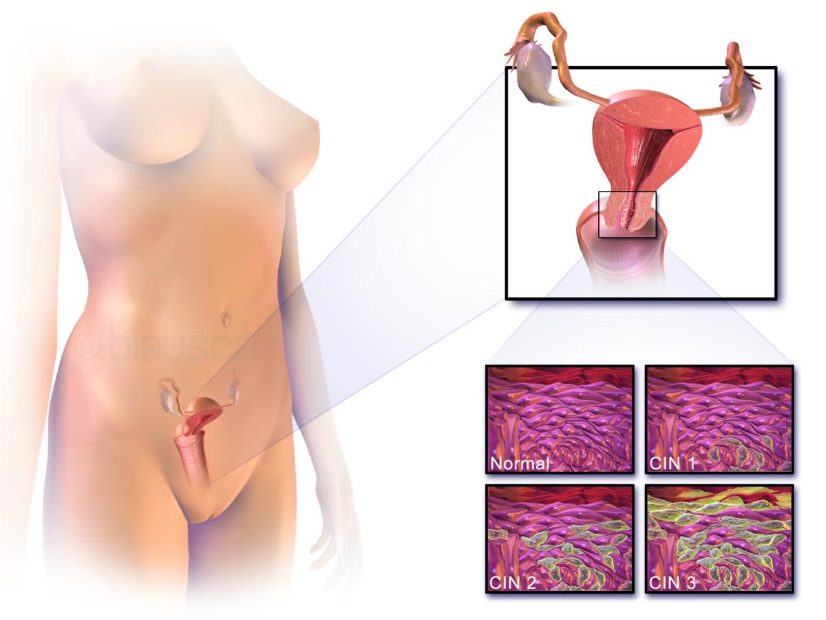 negi genitale la bărbați prin transmisie