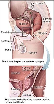 cancerul malign de prostata oxiuri bebe 6 luni