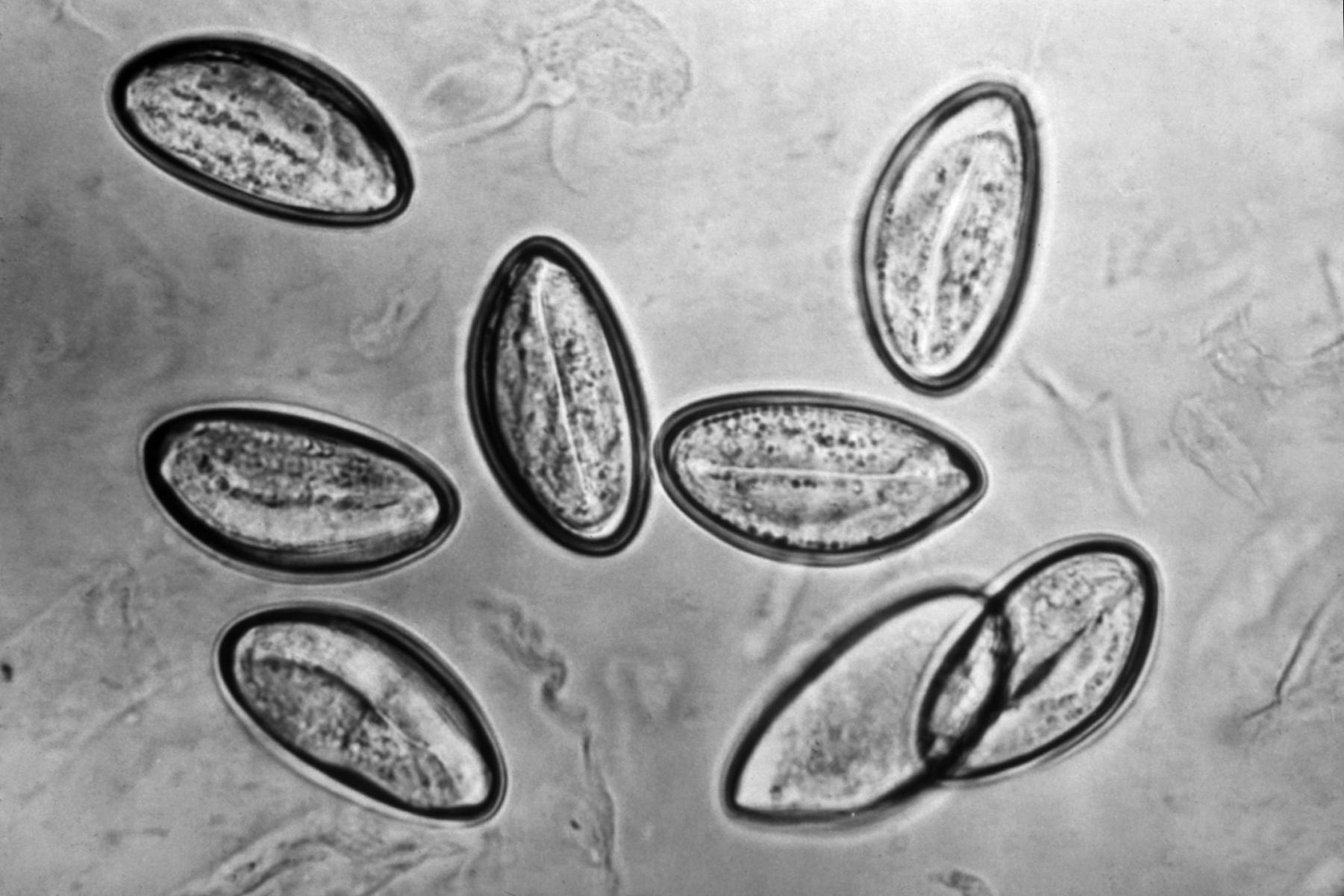 enterobius vermicularis roundworm pachet detoxifiere turcia