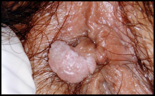 hpv sintomi bruciore gripa tratament antibiotic