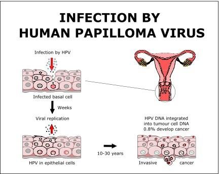 hpv virus cause