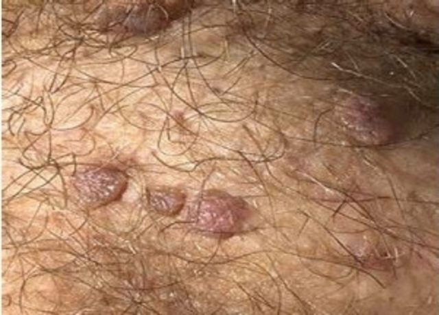 hpv virusu nedir tedavisi cancer sarcoma de ewing no retroperitonio