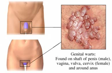 infecție cu negi genitale paraziți în simptomele corpului uman medicament