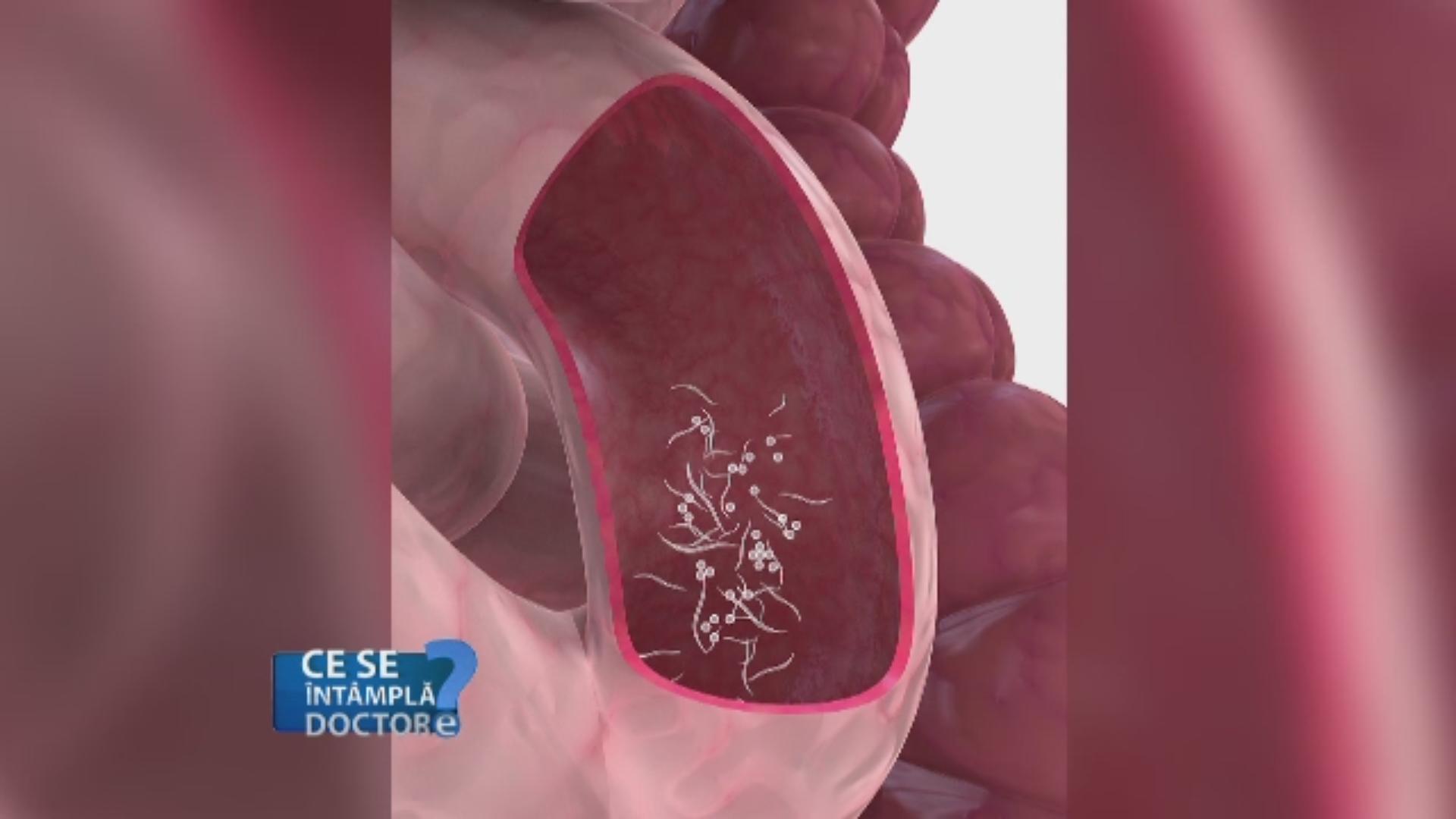 prevenirea viermilor la medicamente la om