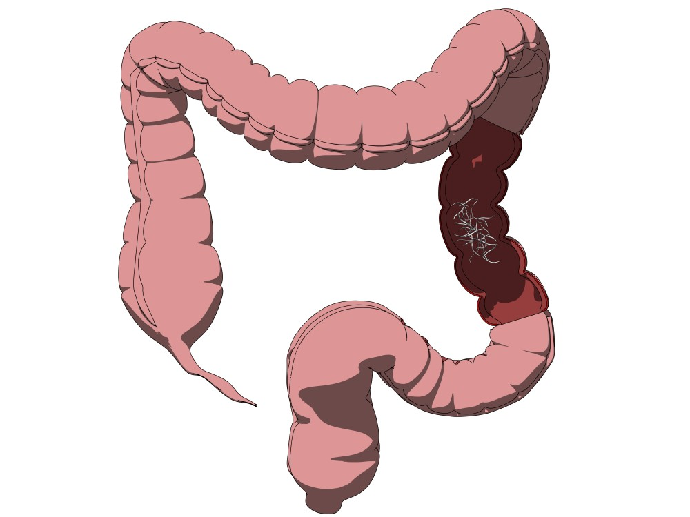 negii genitali in timpul sarcinii