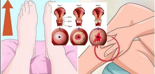 îndepărtarea condilomului din colul uterin hoe herken je hpv virus