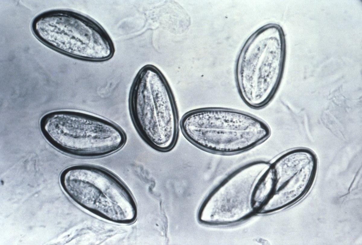 Oxiurus sai nas fezes - Papillomavirus vaccin obligatoire - Verme oxiurus nas fezes